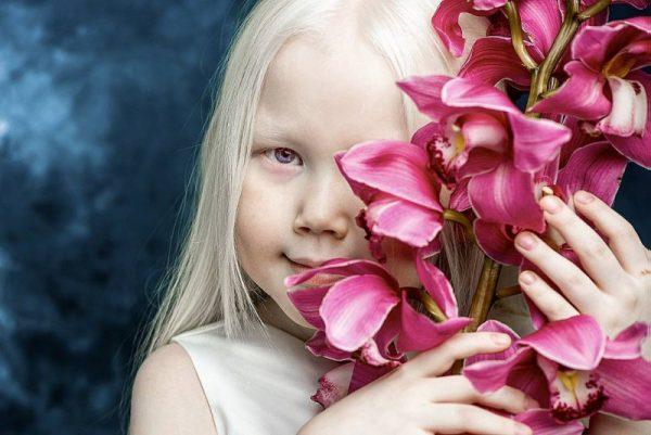Девочка-альбинос с цветами