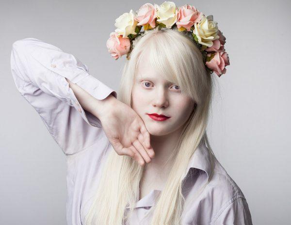 Девушка-альбинос в венке
